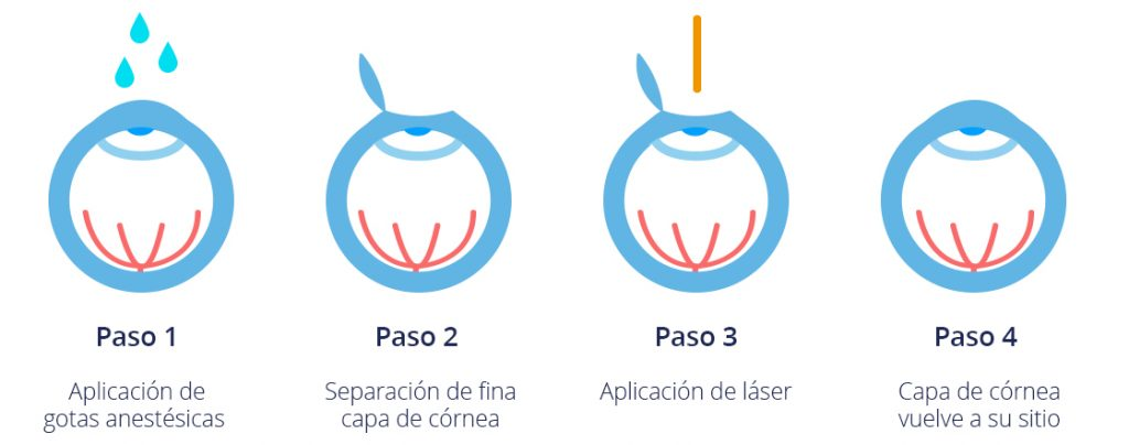 Cirugía Lasik